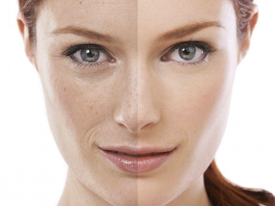 Combatti le macchie della pelle con Eucerin