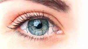 Cause, sintomi e rimedi per la secchezza oculare