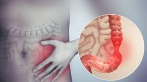 Colon irritabile: sintomi, cause e rimedi