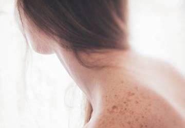Come trattare le macchie della pelle