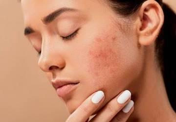 Guida all'acne