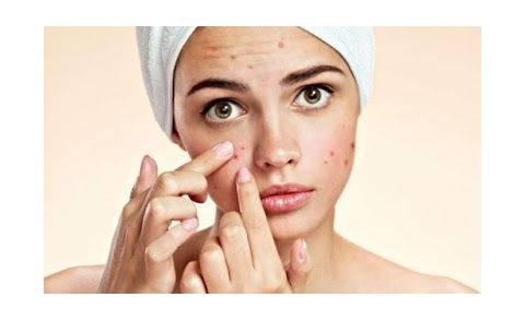 Viso con acne: ecco come detergerlo al meglio