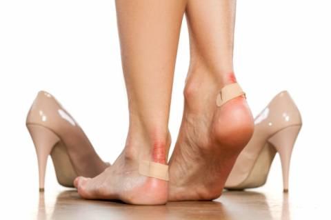 Vesciche ai piedi: cosa fare e cosa non fare