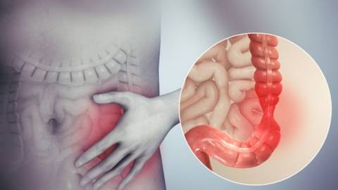 Colon irritabile: sintomi, cause e rimedi