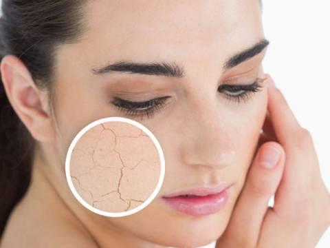 Detersione e idratazione della pelle secca
