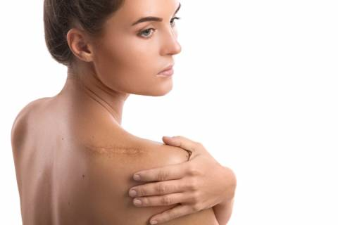 Per saperne di più sulla cura delle cicatrici